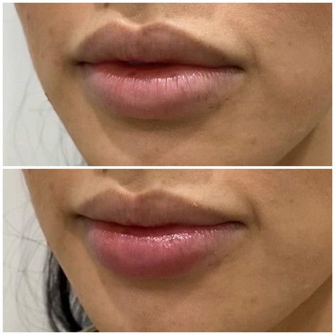 Lips1.jpeg