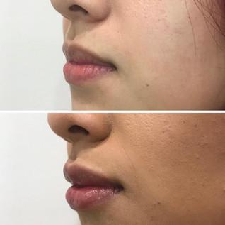 Lips12.jpeg