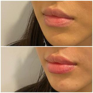 Lips5.jpeg