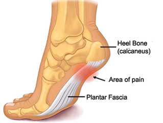 How Reflexology can Help Plantar Fasciitis