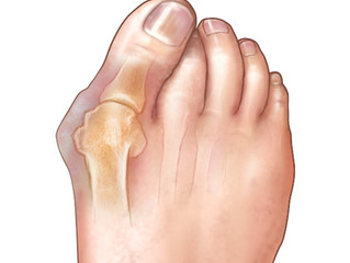 How to Treat Your Bunion Without Surgery!