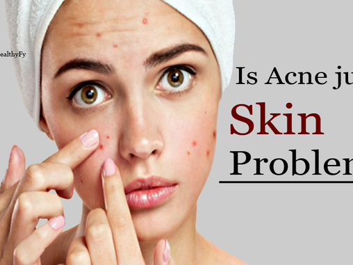 Is Acne Just A Skin Problem