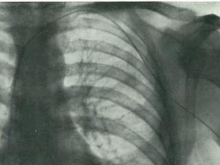 The History of Heart Catheterization