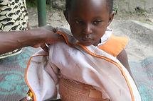 Ugandan child bandaged from a burn