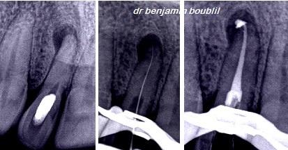 trouver endodontiste
