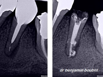 endodontiste 75016