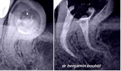 Dr Boublil benjamin
