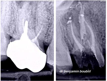 Boublil endodontiste