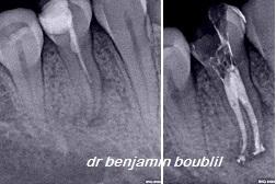 endodontiste 16eme