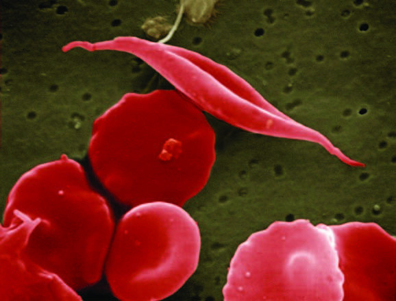 Can Stem Cell  Transplants Cure  Sickle Cell Disease?