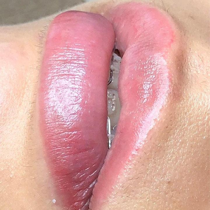 Revitalização de Lábios