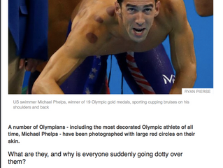 Why so many Olympians covered in large red circles ....