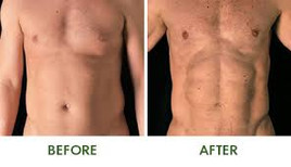 Before and after Body Sculpting4.jpg