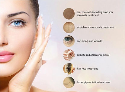 Microneedling for scars stretch marks an