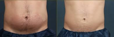 Before and after Body Sculpting7.jpg