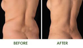 Before and after Body Sculpting2.jpg