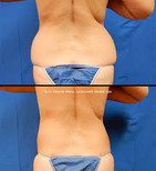 Before and after Body Sculpting11.jpg