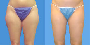 Before and after Body Sculpting8.jpg