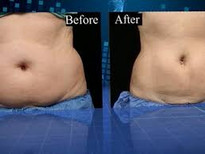 Before and after Body Sculpting10.jpg