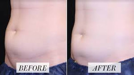 Before and after Body Sculpting1.jpg
