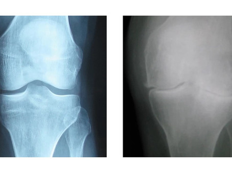What does arthritis look like?