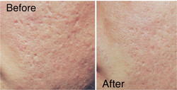 Procell Microneedling