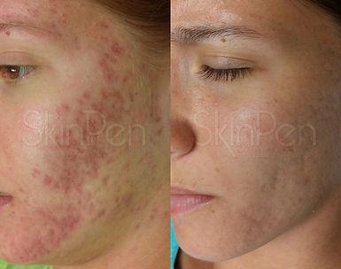 thumbnail_Acne Scarring x6 treatments --