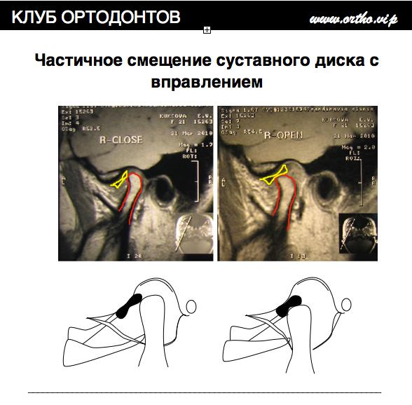 Диагностика внутренних нарушений ВНЧС. МРТ. КТ.