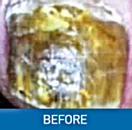before  laser fungal treatment