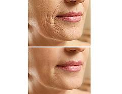 PDO thread face lift