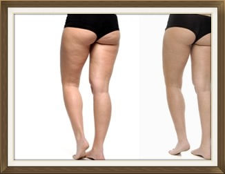 Cellulite and skin tightening with Radiofrequency