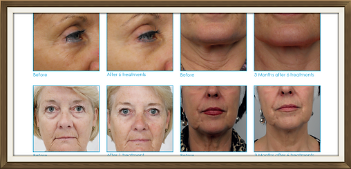 before and after treatment with radiofrequency and laser rejuvenation