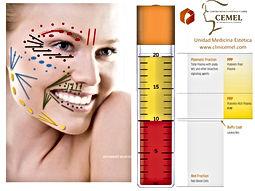PRP Treatment- vampire facelift