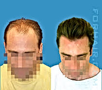 before and after hair transpalnt