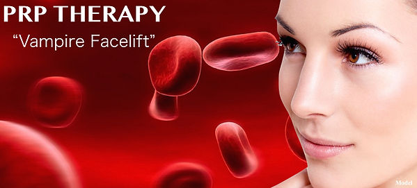 Vampire Facelift- PRP Therapy-