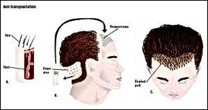 hair, eyebrow and eyelashes resturation
