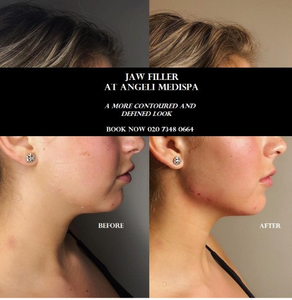 jaw filler 2 mil Volux juvederm