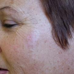 Lesions Human Cheek Before