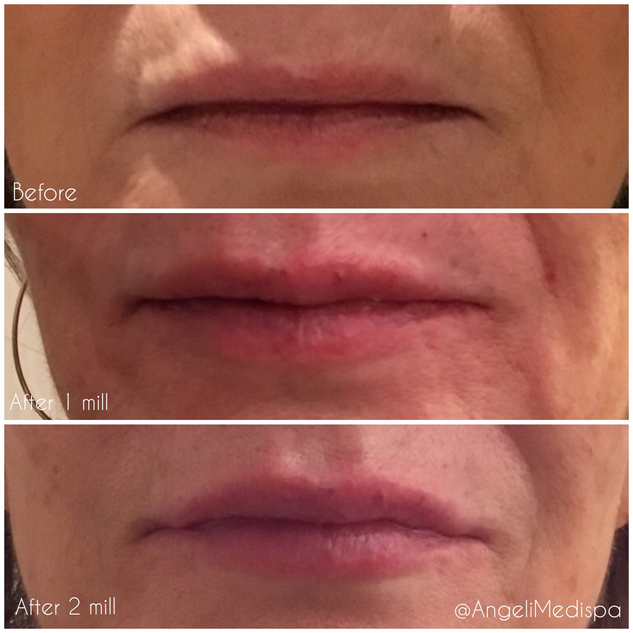 lIP INHANCMENT BY dermal FILLER