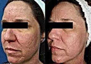 Laser skin resurfacing acne