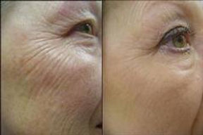 Anti wrinkle injection- botox- frown- line