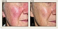 Laser skin resurface rosacea spider veins
