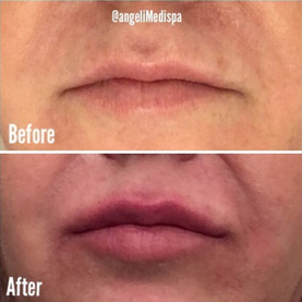 BEFORE AND AFTER lIP INHANCMENT