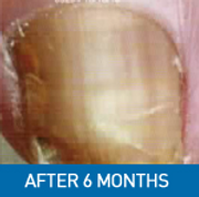 After laser fungal nail treatment