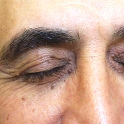 Before Cryopen Treatment