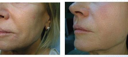 PROFHILO anti aging treatment