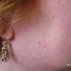 After Cyropen treatment