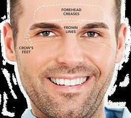 Male Botox.png