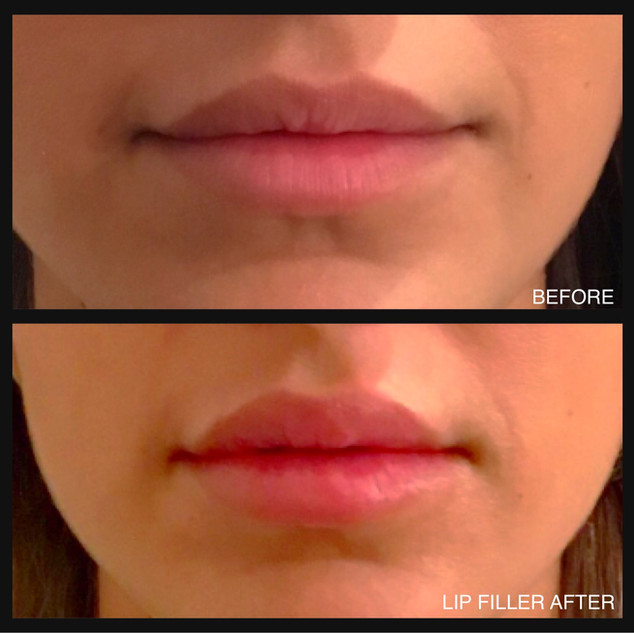 Lip enhancment Juvederm 1 mil