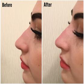 nose corection with dermal filler